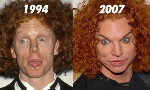 Top List Of Hollywood Celebrity Plastic Surgery Gone Wrong
